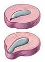 protusione lombare cervicale Fisioterapia ernia del disco senza intervento