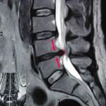 ernia rmn ernia lombare fisioterapia ernia del disco senza intervento