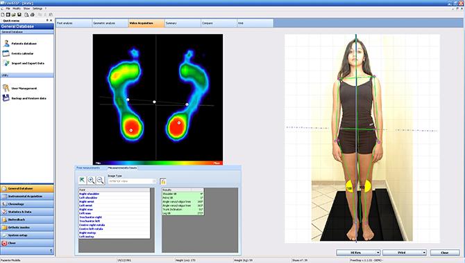 Analisi Posturale e Baropodometrica