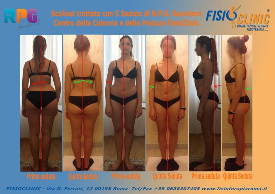 Scoliosi lombare fisioterapia posturale roma Rieducazione Posturale Globale souchard