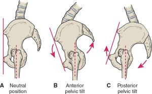 Postura-Bacino-Perineo-Prolasso-Rpg-Souchard