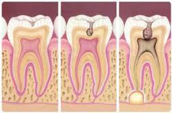 Dibujo_con_tres_dientes_que_muestran_la_evolución_de_una_caries