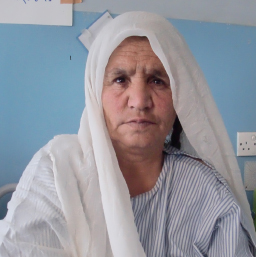 Kabuli, from Afghanistan (photo credit: CURE International)