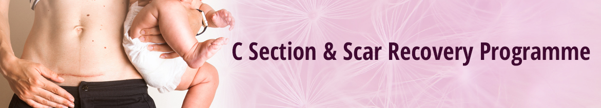 C Section and Scar Recovery Programme