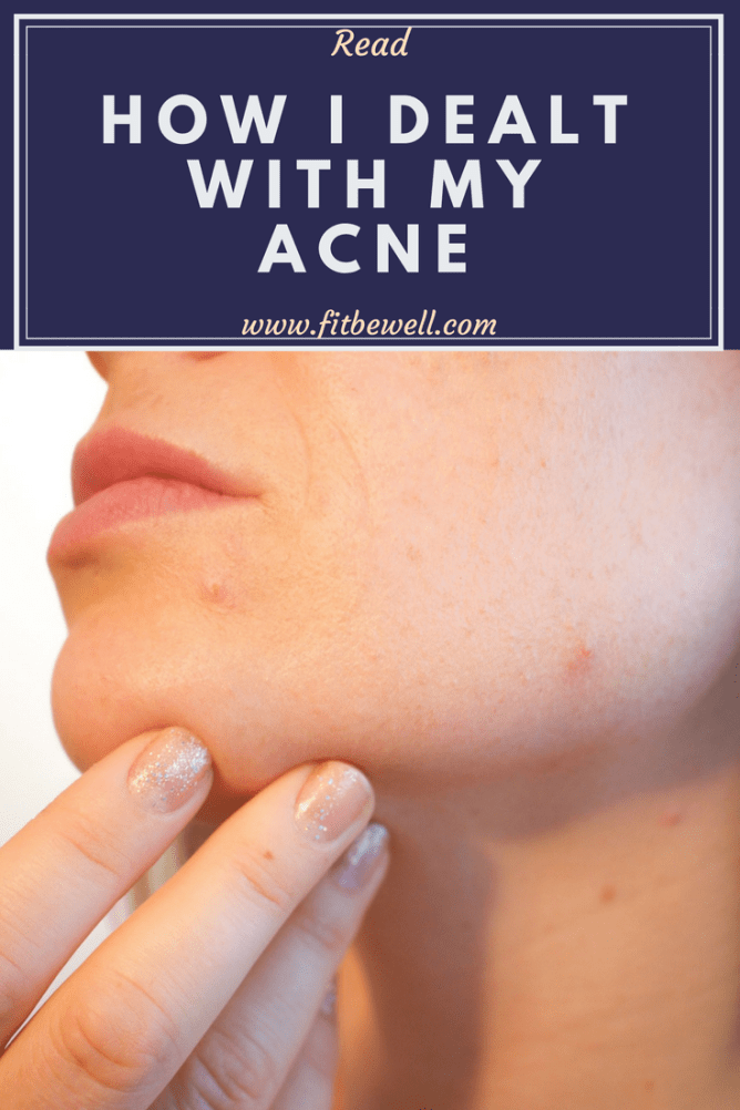 how i dealt with my acne. Shatter the stigma around any kind of acne around you, Check out how I helped myself rid acne