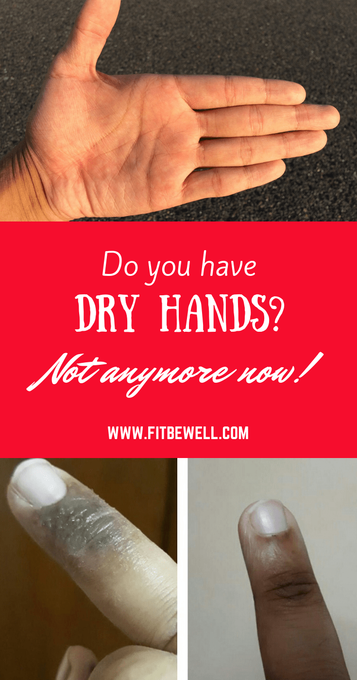 DRY HANDS how to treat them