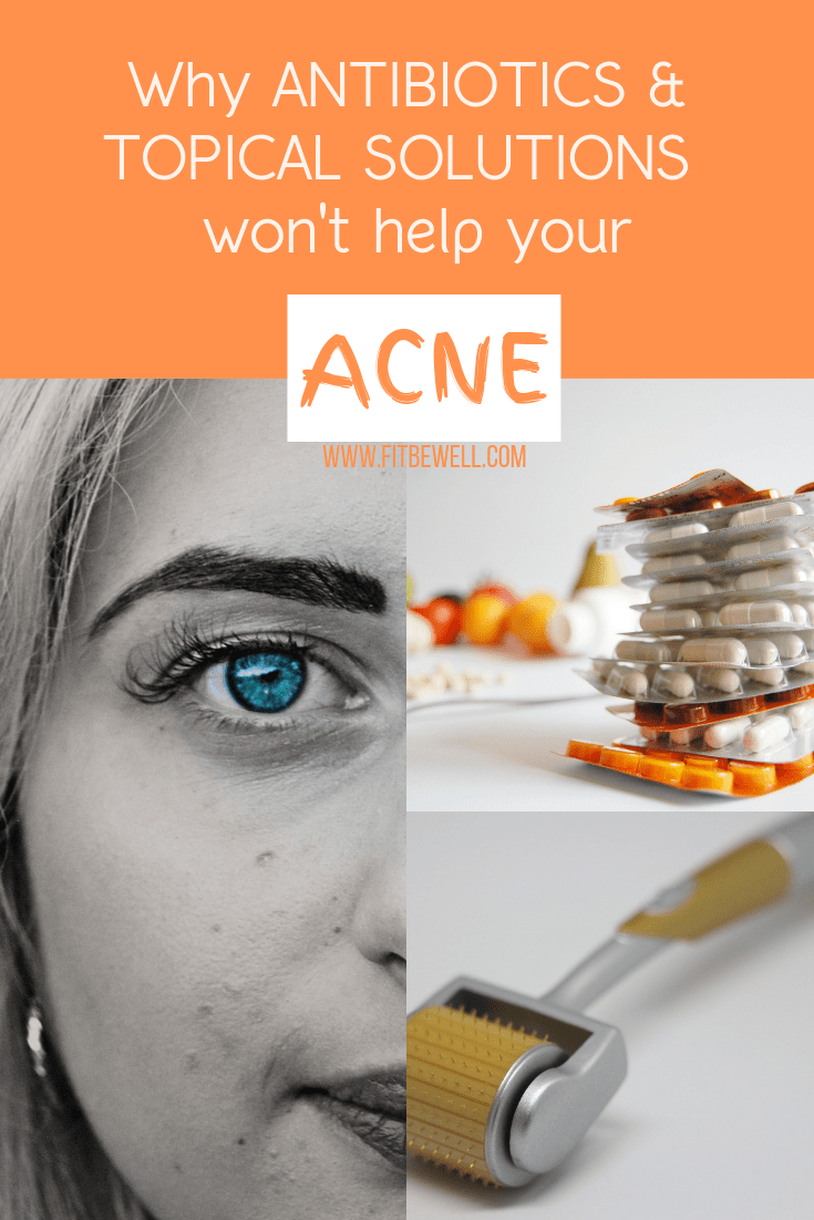 Why antibiotics & topical solutions don't help your acne