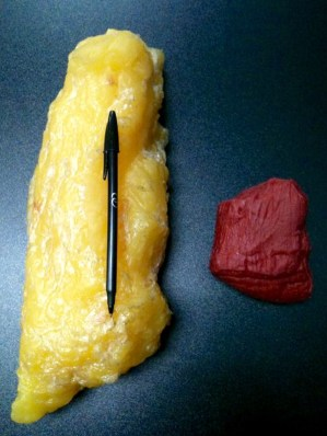 muscle vs fat, exercise weight gain, increase muscle mass, weight loss program, muscle building program, active recovery