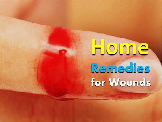 Home Remedies for Wounds