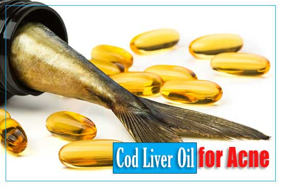 Cod Liver Oil for Acne