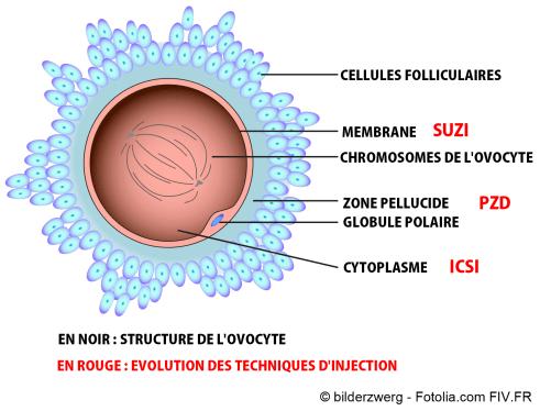 Ovocyte et avancée des techniques