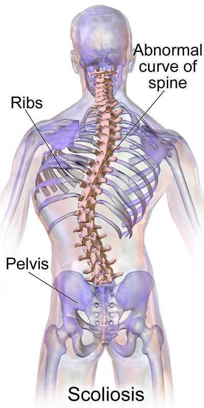 Fizio GP - Problemi kralježnice - skolioza