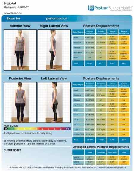digitális testtartás vizsgálat 01