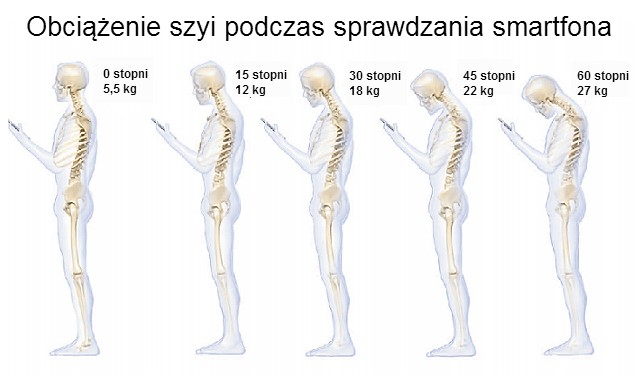 "Text Neck Syndrome czyli ""sms-owy kark"""