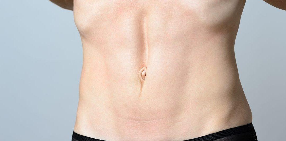 Siły powodujące rozejście mięśnia prostego brzucha (RMPB)