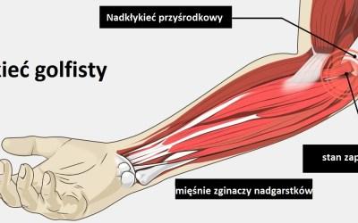 łokieć golfisty anatomia - BLOG