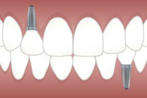 implanted tooth