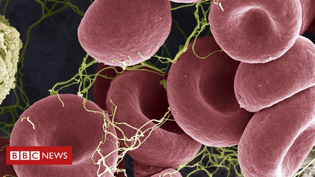 Rare blood clots - what you need to know