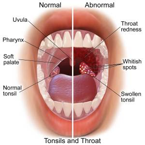 Blausen_0860_Tonsils&Throat_Anatomy_web