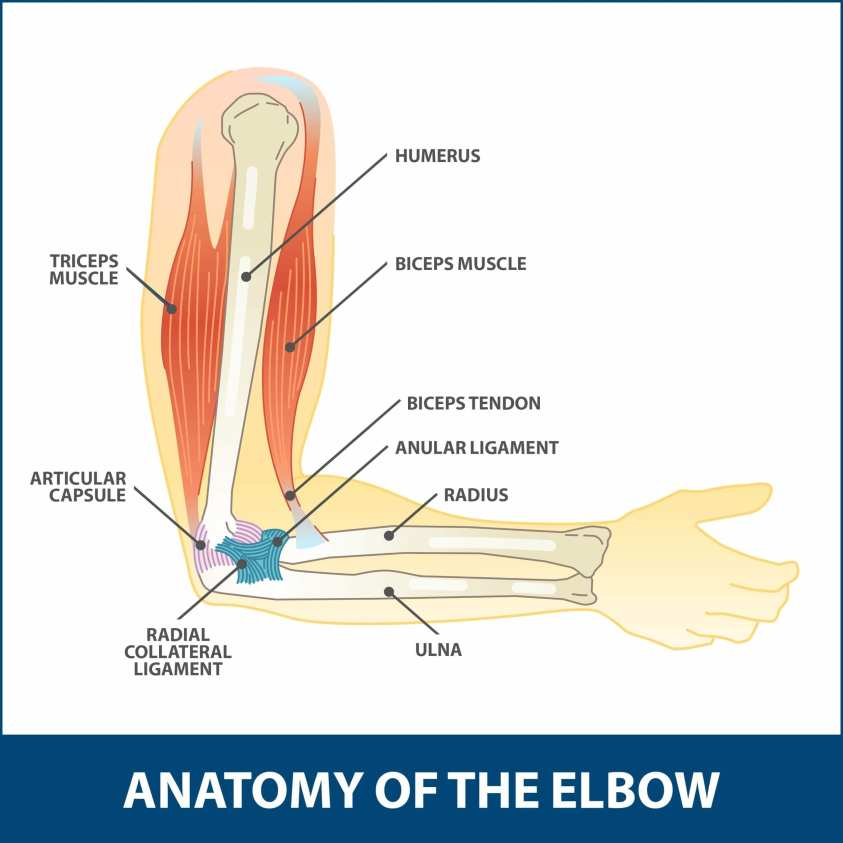 Hyperextension Injury of the Elbow | Florida Orthopaedic ...