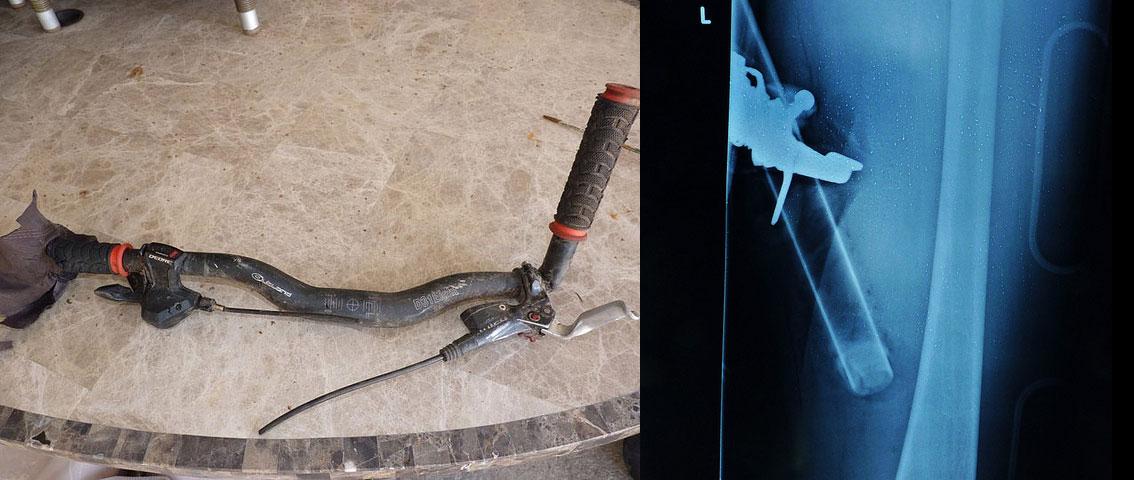 bar end lenker verletzung impaled