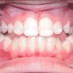teeth-of-nemphos