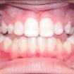 teeth-of-nemphos