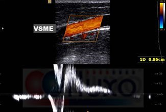 Doppler venoso refluxo de safena magna