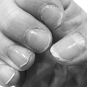 ongles après pose de vernis gel