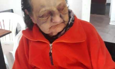 Denuncia Penal a un geriátrico por golpear a una abuela