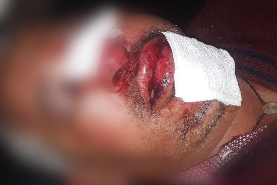 Caso Baez… La policía continúa investigando y él será intervenido quirúrgicamente