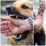«Imputaron al dueño de los perros que atacaron a un niño de 7 años y a su papá en B° Argentino