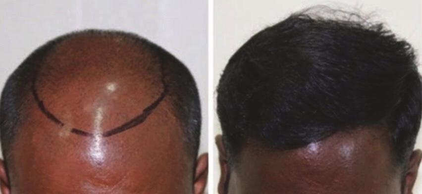 Pioneers in hair transplantation in Hyderabad