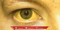اسباب اصفرار الوجه المفاجئ وطرق العلاج المختلفة