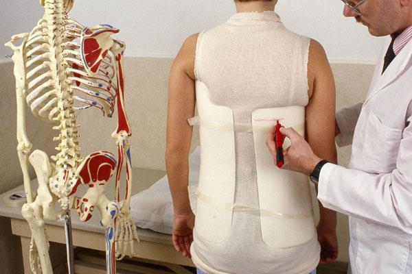 علاج الجنف بالتمارين الرياضية والحجامة والعلاج الطبيعي