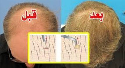 اماكن وتكلفة زراعة الشعر في مصر ومقارنتها بالدول الاخرى