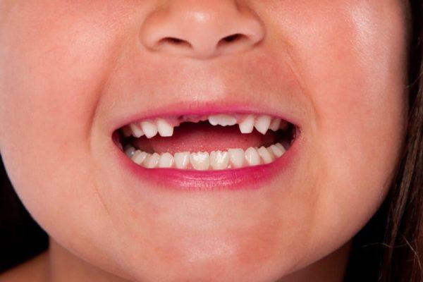 تفسير حلم سقوط الاسنان السفلى