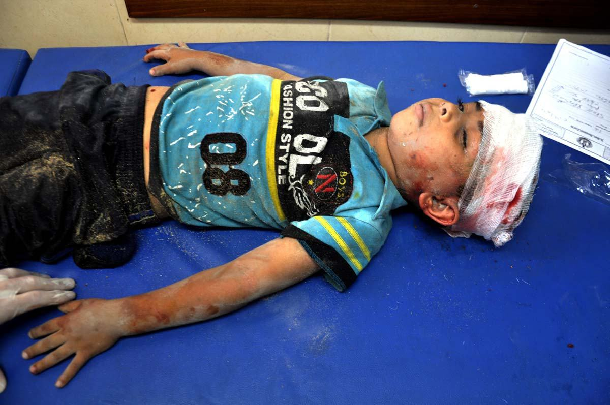 palestinian-chil-injured-in-latest-attack-by-Israel-2014