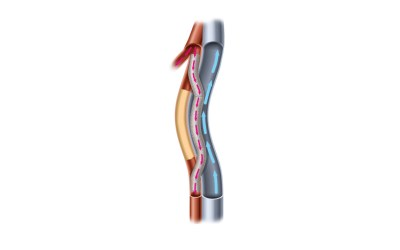 "PQ Bypass Receives FDA ""Breakthrough Device Designation"" for the World's First Fully Percutaneous Femoral-Popliteal Bypass Device"