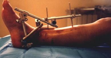 fixador-ortopedico
