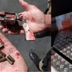 Homem leva tiros no rosto após invadir a casa da ex para matar atual dela