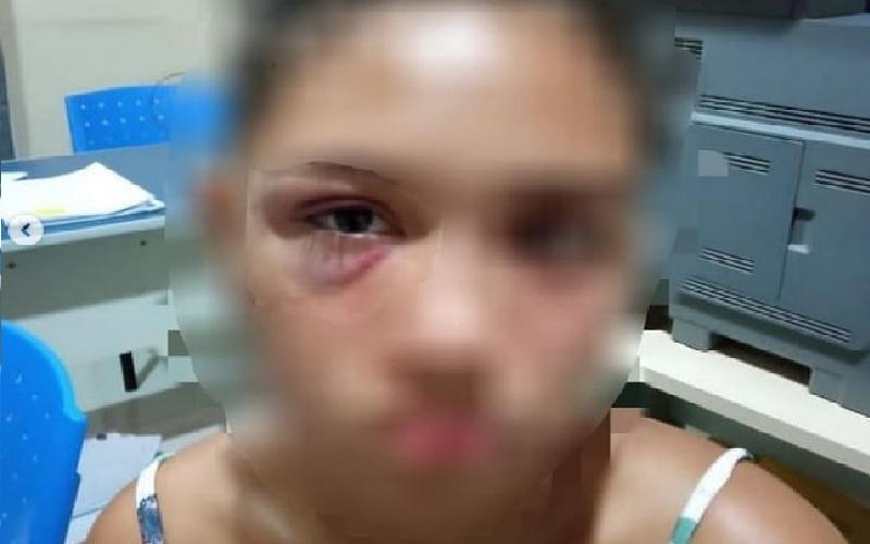 A vítima apresentou hematoma no olho direito (foto:Divulgação PM)