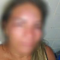 Homem é preso após agredir a esposa em Novo Progresso