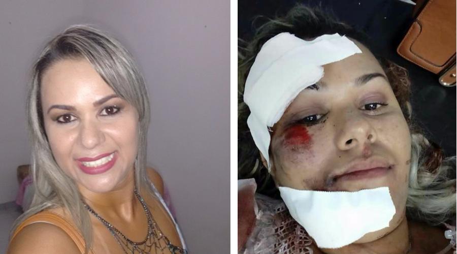 Jovem em moto se choca com cachorro de rua e sofre forte pancada na cabeça, em Patos