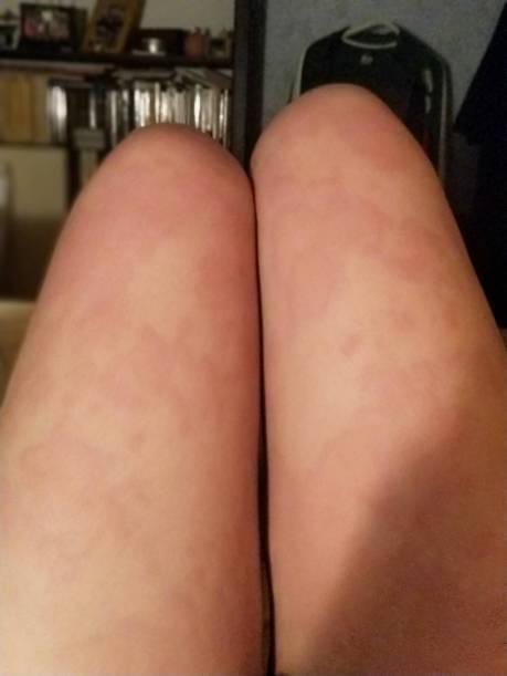 人生第二次蕁麻疹變成匈牙利住院記😷