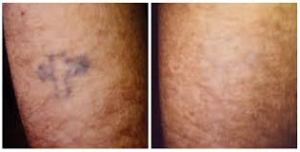 dermatologist laser tattoo removal 1
