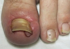 Image result for ingrown toenails