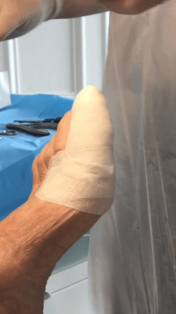 Nail surgery dressings