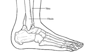 Ankle Fractures  Foot Health Facts  Foot Health Facts