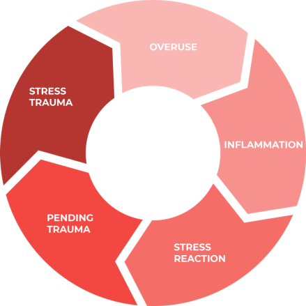 Achilles Tendon injury chart